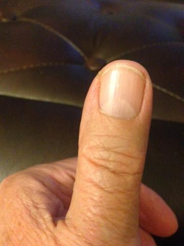 Thumb (Small)